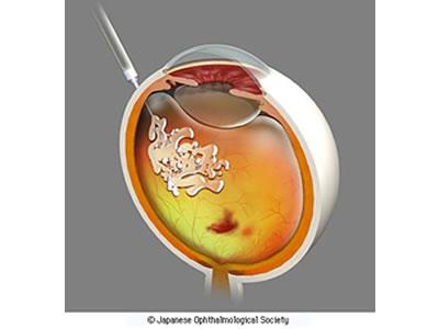 図3 硝子体内注射による薬物治療
