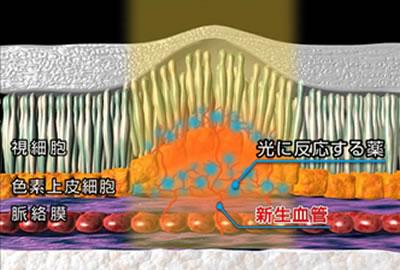 図4 光線力学的療法(PDT)