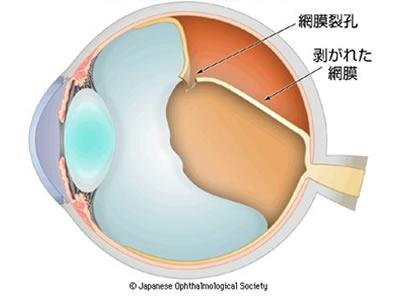 図1 裂孔原性網膜剥離