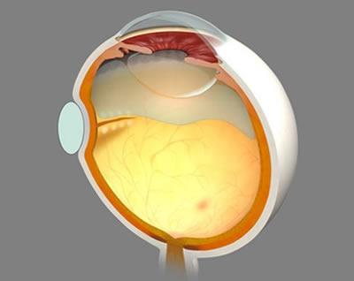 図2 網膜剥離に対する強膜内陥術