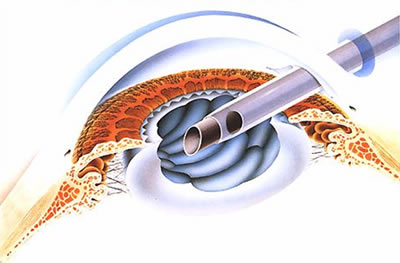 図1.白内障の超音波乳化吸引術