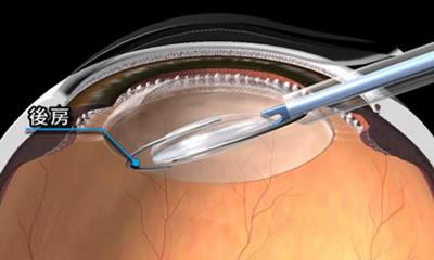 図2.眼内レンズの挿入(1)