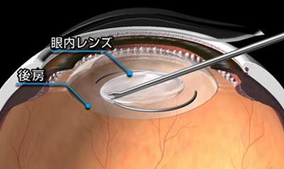 図3.眼内レンズの挿入(2)