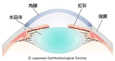 図1 前眼部の構造