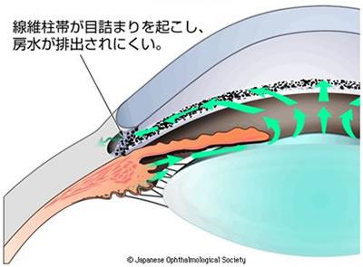 図2 隅角の広さによる緑内障の分類