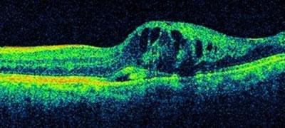 図2 黄斑浮腫(むくみ)を併発した網膜静脈分枝閉塞症の網膜断層検査(光干渉断層計)像