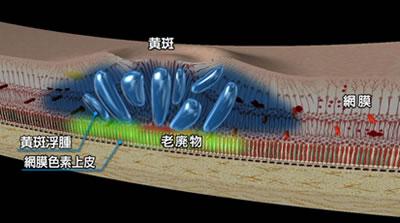 図1 糖尿病黄斑浮腫