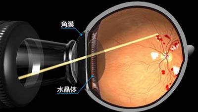 図a) 眼底へのレーザーの照射