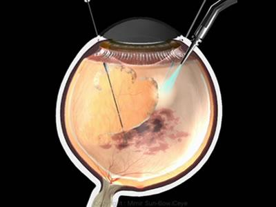 図a) 硝子体出血に対する硝子体手術