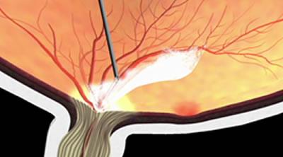 図b) 増殖膜の切除